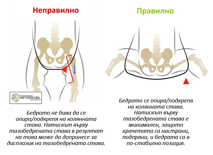 кенгуру или ергономична раница, бебеносене, ергономична поза при носене на бебе